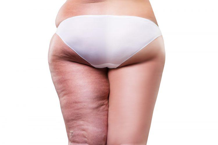 Conoce los 10 Mejores Suplementos para Combatir la Celulitis